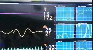 病人监护系统:无扰式健康跟踪仪解决方案