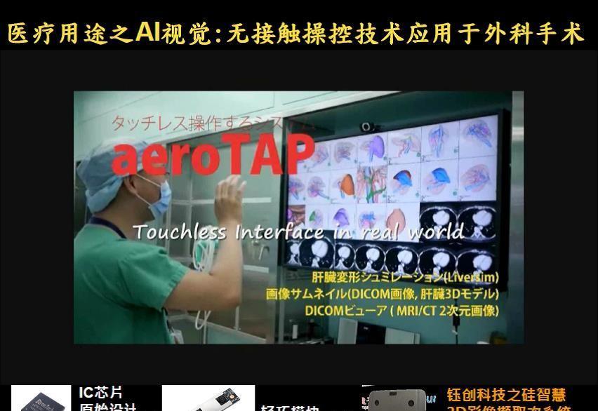 医生用无接触操控技术进行肝脏肿瘤切除手术.jpg